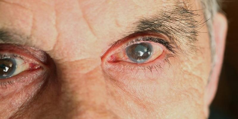 Восемь пожилых киприотов потеряли зрение после операции в частной клинике